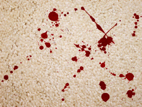 Removing blood stains from Carpet